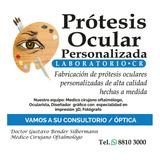 Prótesis Oculares Personalizadas