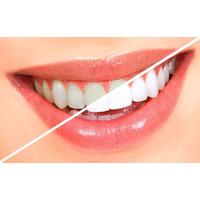Geles Blanqueadores - Kit Blanqueamiento Dental